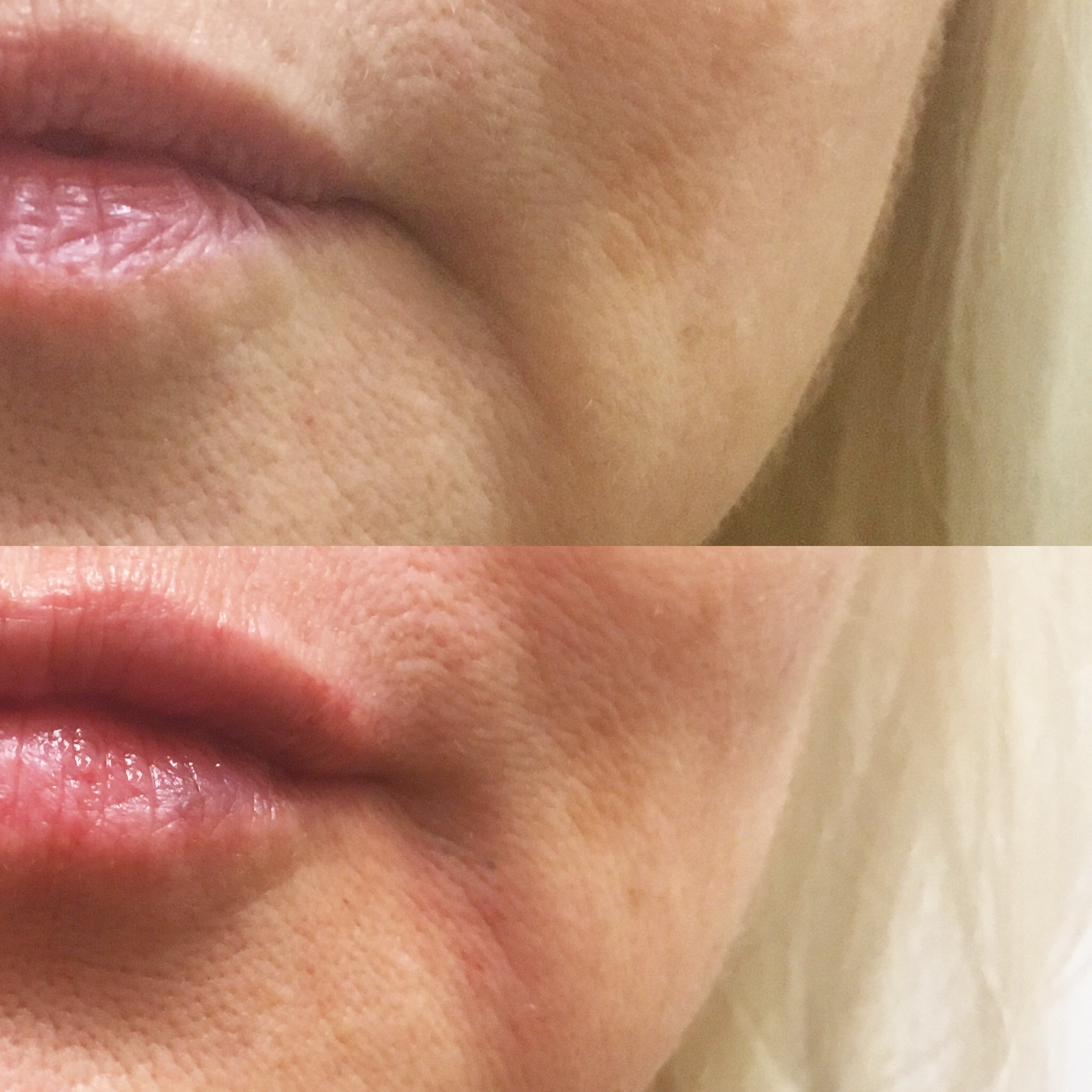 Juvederm to Soften Lines
