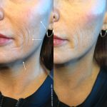 filler before and afters