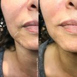 before after juvederm ultra