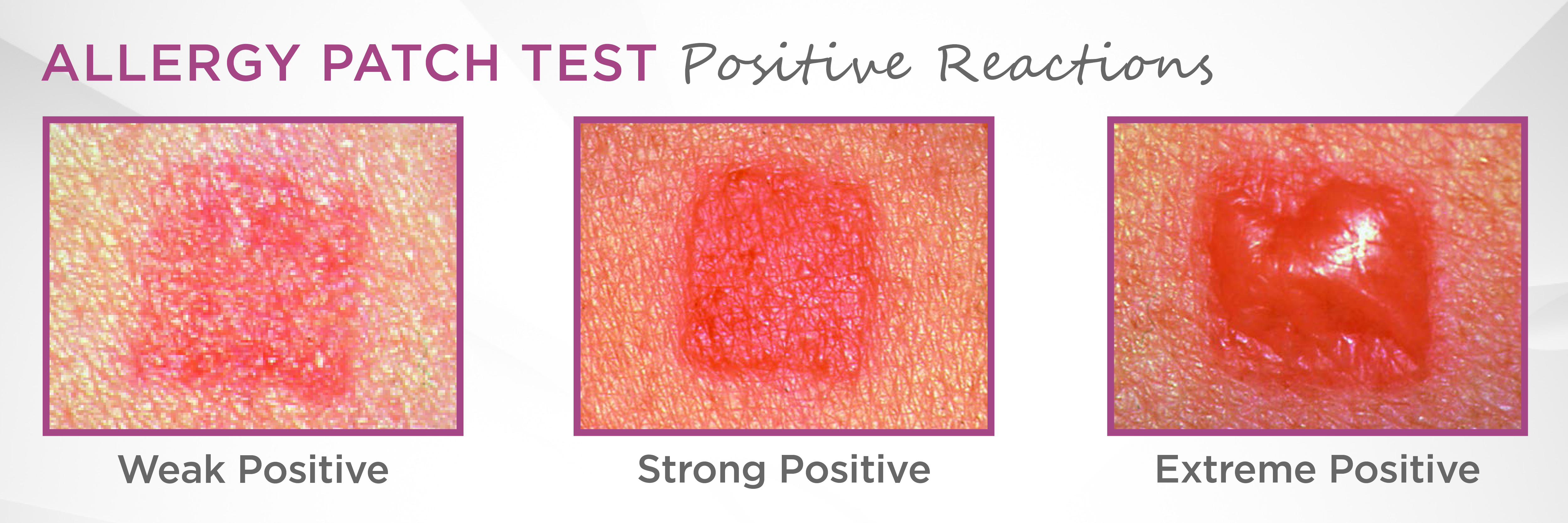 allergy patch test results.png