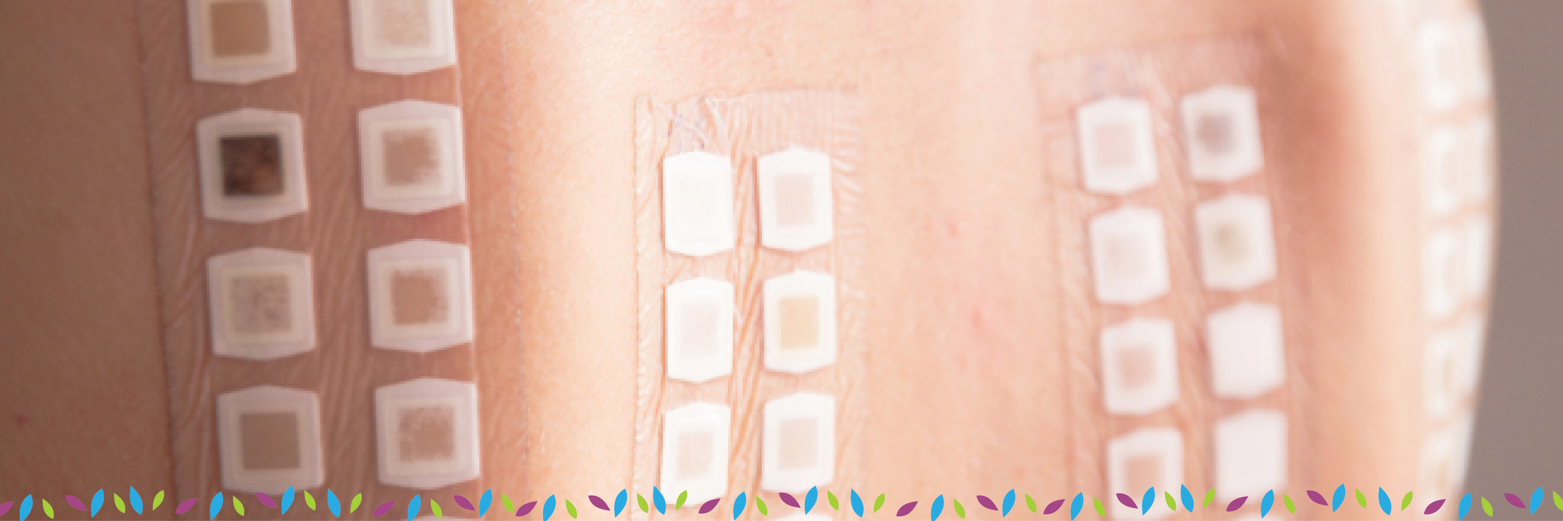 Allergy Skin Patch Testing