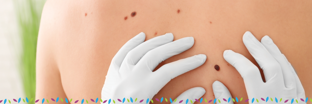 Skin Cancer Treatment Prevention Affiliated Dermatology