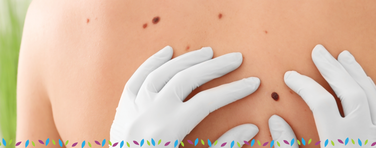 woman inspecting mole for skin cancer prevention